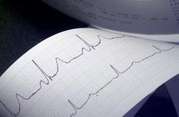 Hjärta - EKG